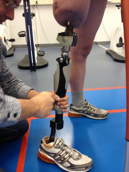 Osseointegration Approved By The Fda A Step Ahead Prosthetics