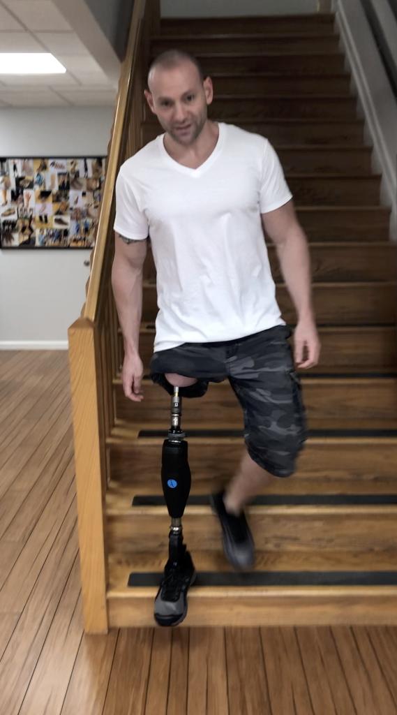 Osseointegration A Step Ahead Prosthetics